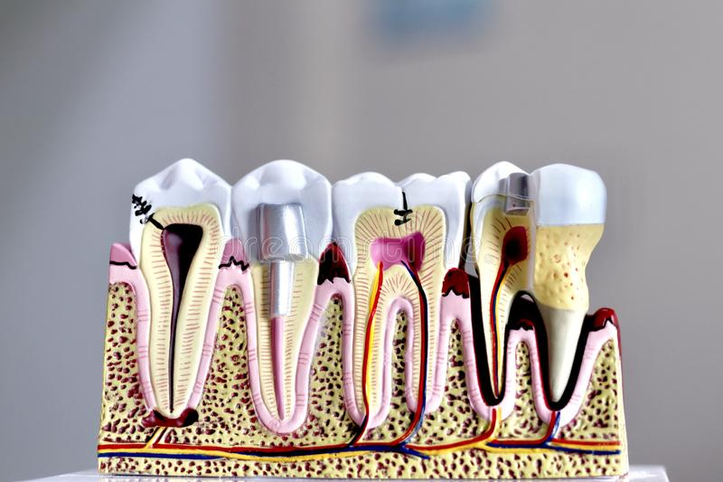 tooth model royalty free stock images