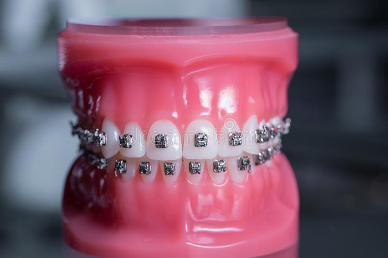 Tooth model with metal wired dental braces stock photos