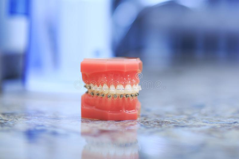 Tooth model with metal wired dental braces. Orthodontic dental model. royalty free stock photos