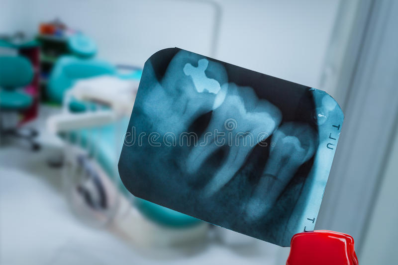 Tooth and overlapping teeth in X-ray film showing and tweezer ag royalty free stock photography