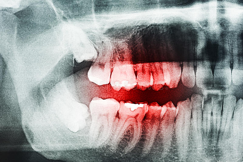 Tooth Pain On X-Ray stock illustration