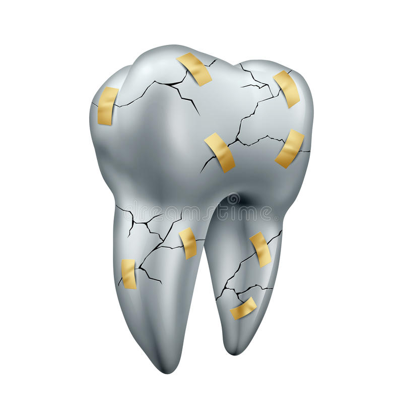Tooth Repair. Dental concept as a health care symbol for dentist surgery or fixing or repairing damaged teeth due to decay or cavities as a cracked molar with stock illustration