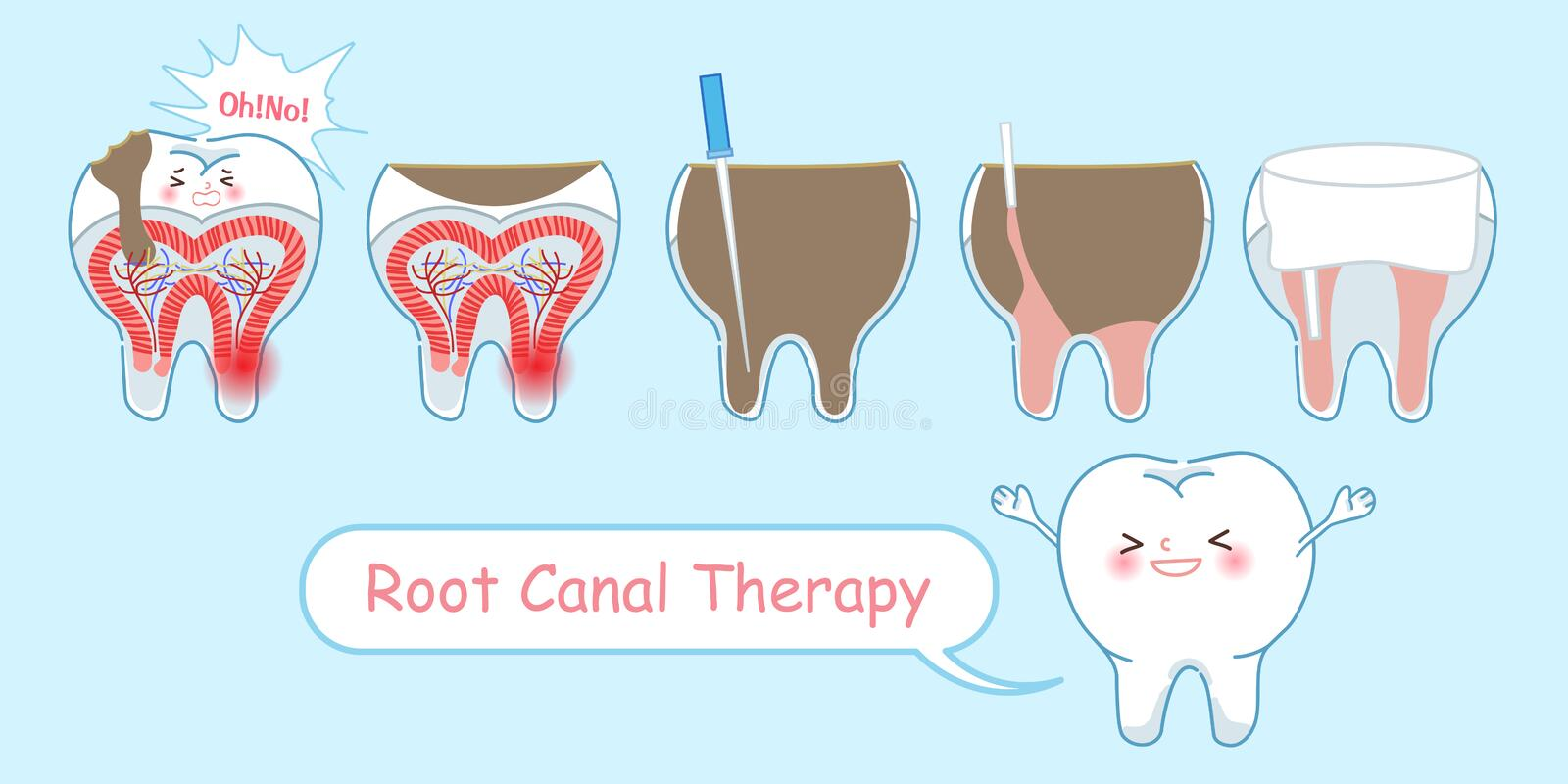 Tooth with root canal therapy. On the blue background royalty free illustration
