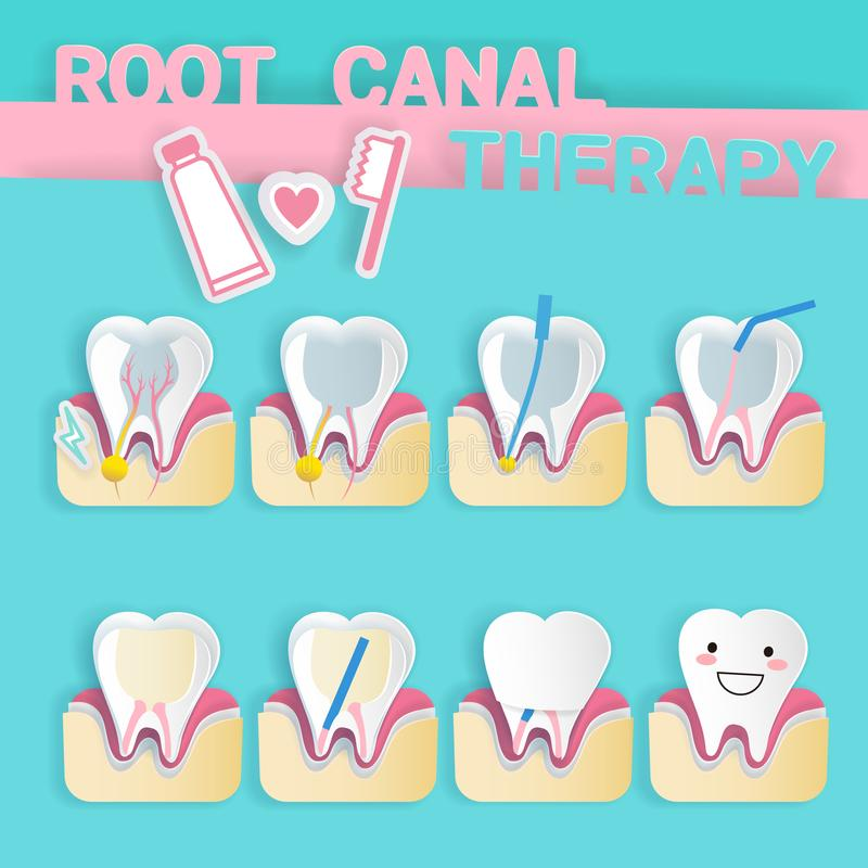 Tooth with root canal therapy. On the blue background vector illustration