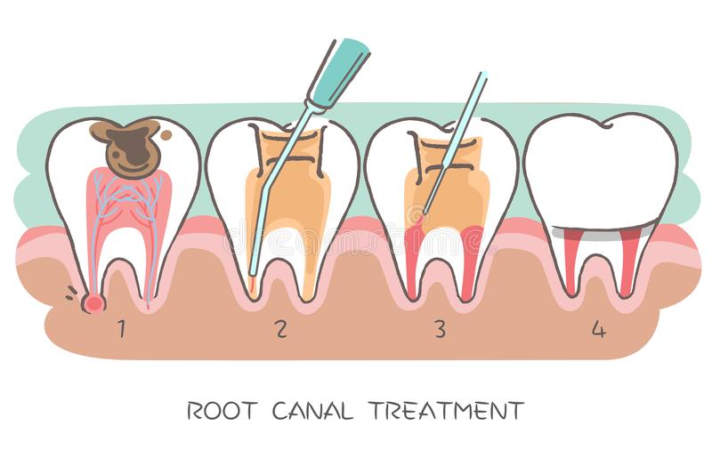 Tooth with root canal treatment royalty free illustration