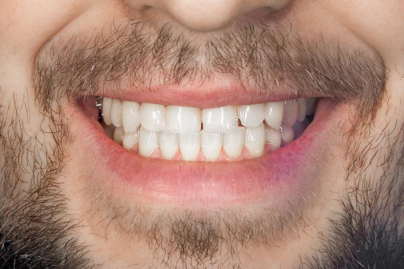 Tooth smile close up. The concept of healthy proper oral hygiene stock photos