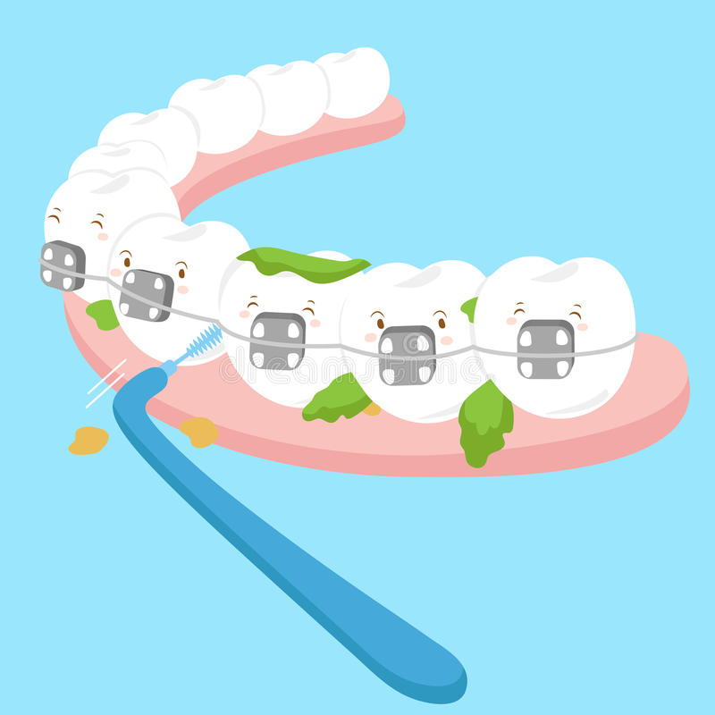 Tooth wear brace with brush stock illustration