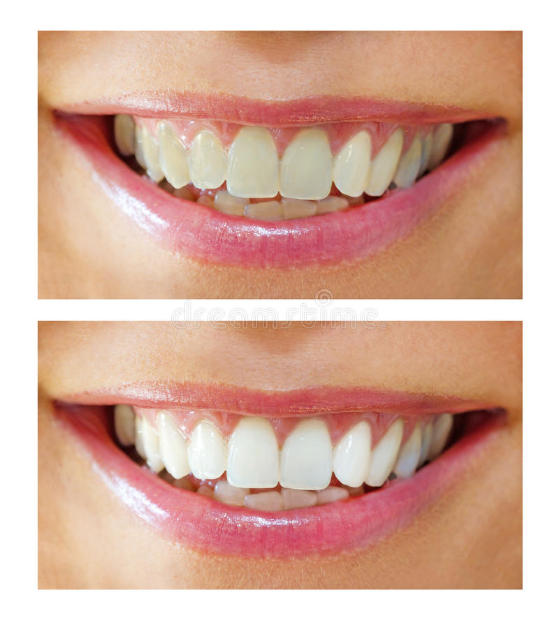 Download Tooth Whitening - Before ,after Stock Image - Image: 21563139