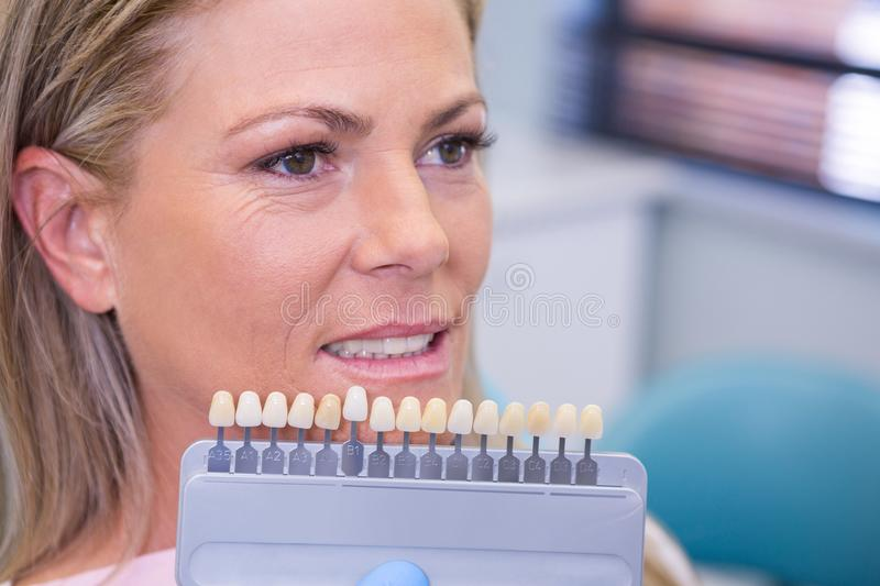 Tooth whitening equipment by smiling patient at medical clinic stock photo