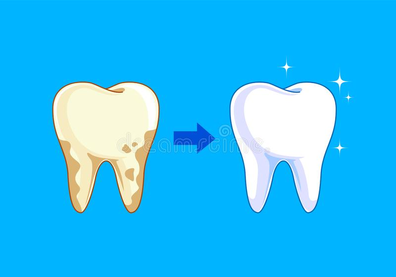 Tooth before and after. Yellow becomes white, vector illustration