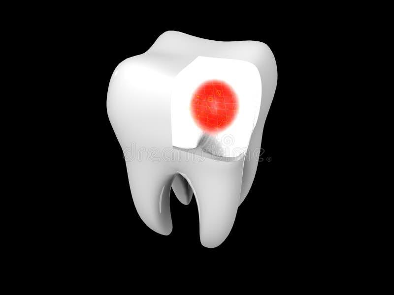 Toothache ilustração do vetor