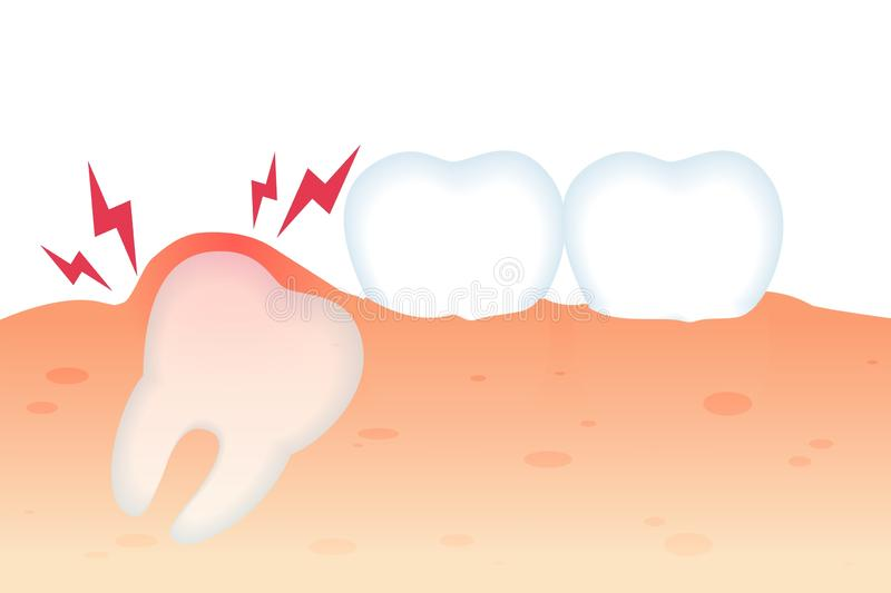 Toothache with Tooth Growth Flat Vector Realistic. royalty free illustration