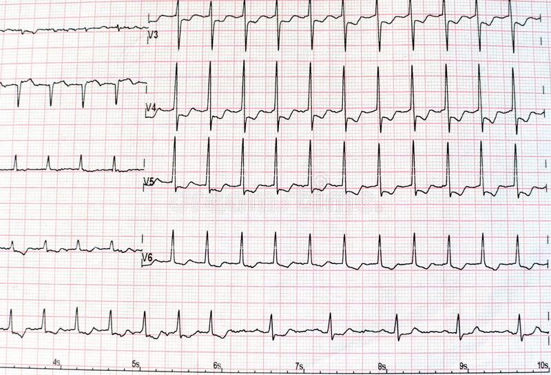 Top view of an electrocardiogram in printed paper form for health care and medical concept or background. EKG or ECG. royalty free stock images