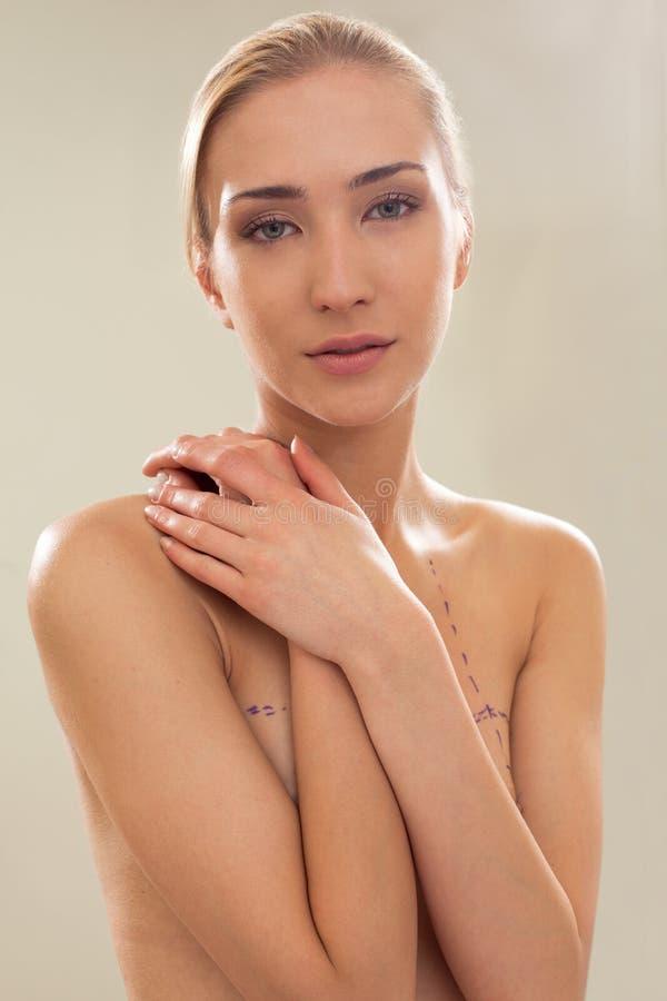 topless bröstkorrigeringskvinnlig arkivfoto