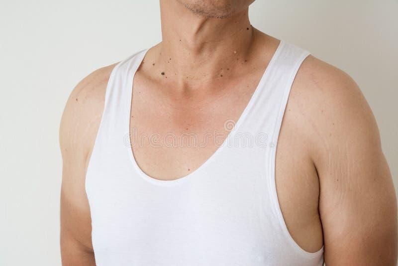 Topo en piel de los hombres foto de archivo