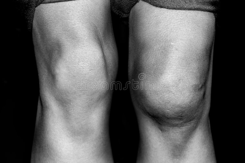 Torn Medial Patellar resulting from a knee dislocation royalty free stock image
