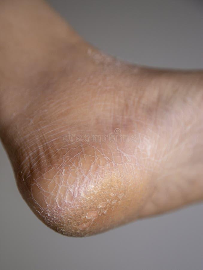 Torr hud som knäckas på hälet arkivfoton