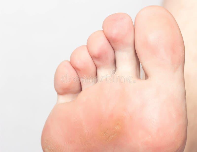 Torr mazol och natoptysh med en inre kärna på det endast och benet av en person, närbild, dermatologi, defekt, problem royaltyfri foto