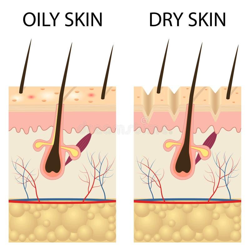 Torr och oljig hud royaltyfri illustrationer