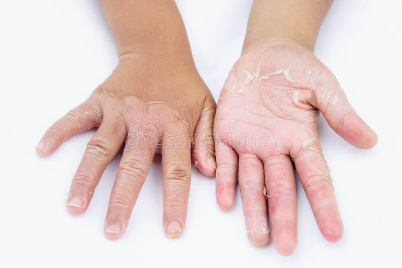 Torra händer, peel, kontaktdermatit, svamp- infektioner, hud inf arkivfoton