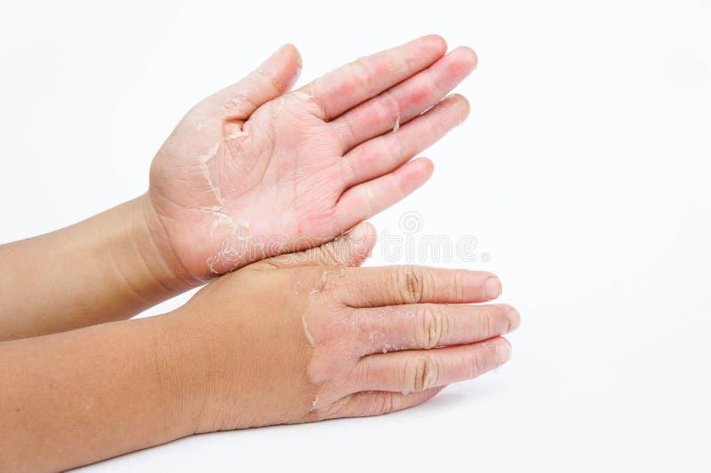 Torra händer, peel, kontaktdermatit, svamp- infektioner, hud inf royaltyfria foton