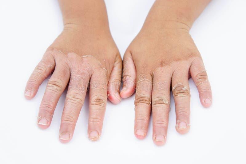 Torra händer, peel, kontaktdermatit, svamp- infektioner, hud inf royaltyfri foto