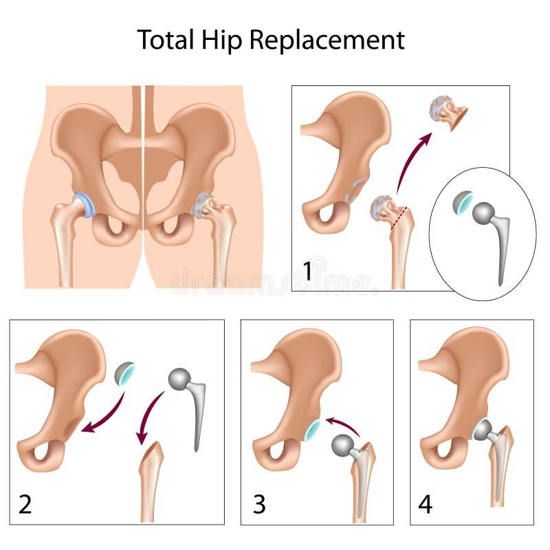total för höftutbyteskirurgi vektor illustrationer