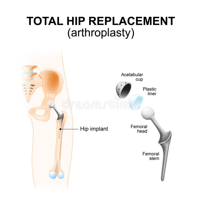 Total hip replacement or arthroplasty. Total hip replacement or arthroplasty and hip Implant stock illustration