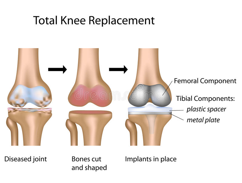 Total knee replacement surgery. Total knee replacement surgical procedure, eps10 royalty free illustration