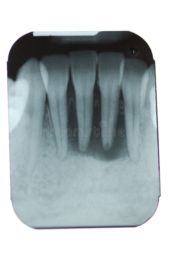Total Periodontal Bone Loss stock photo