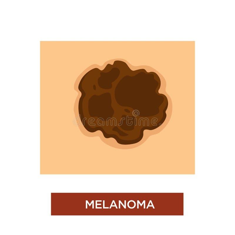 Toupeira perigosa da doença da melanoma ou do câncer de pele ilustração royalty free