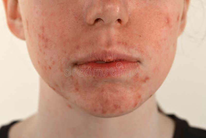 Trądzik, blizny i czerwieni ropieje krosty na twarzy młoda kobieta, pojęcie skóra problemy i harmoniczny niepowodzenie obrazy royalty free