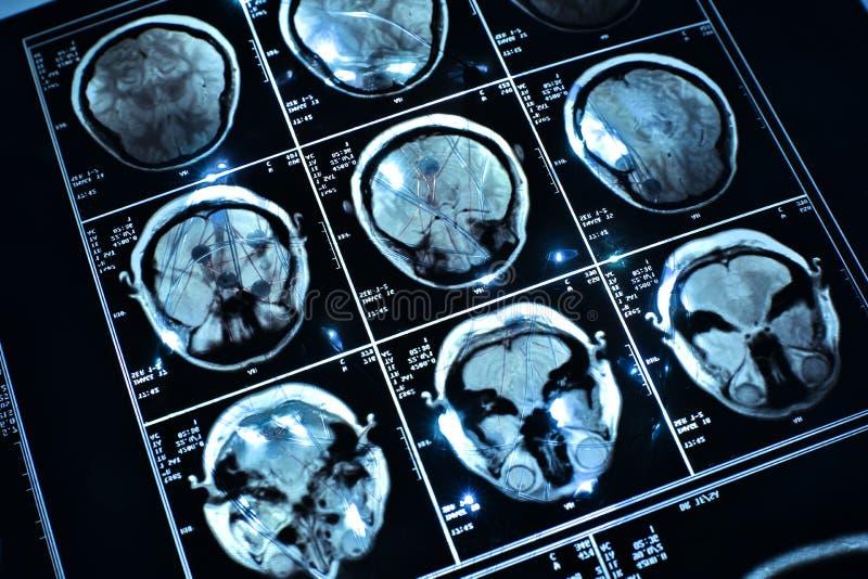 Tråd på hjärna royaltyfri bild