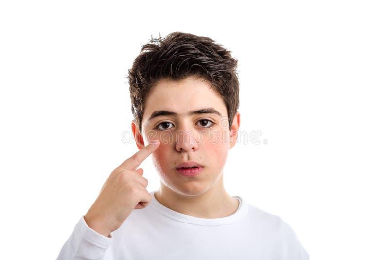Trądzik Kaukaska chłopiec wskazuje z prawym wskaźnikiem jego oko obraz stock