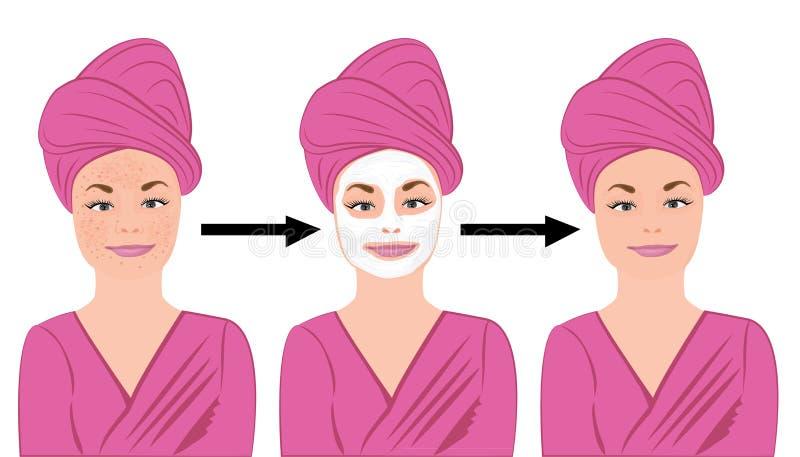 Trądzik skóry choroba przed i po traktowaniem ilustracji