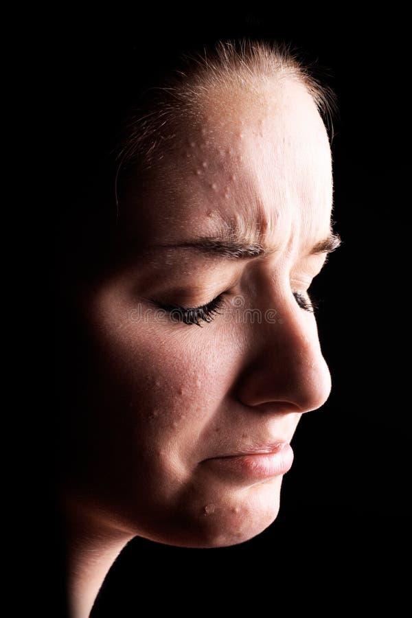 trądzika cierpiący przygnębiony żeński obrazy stock