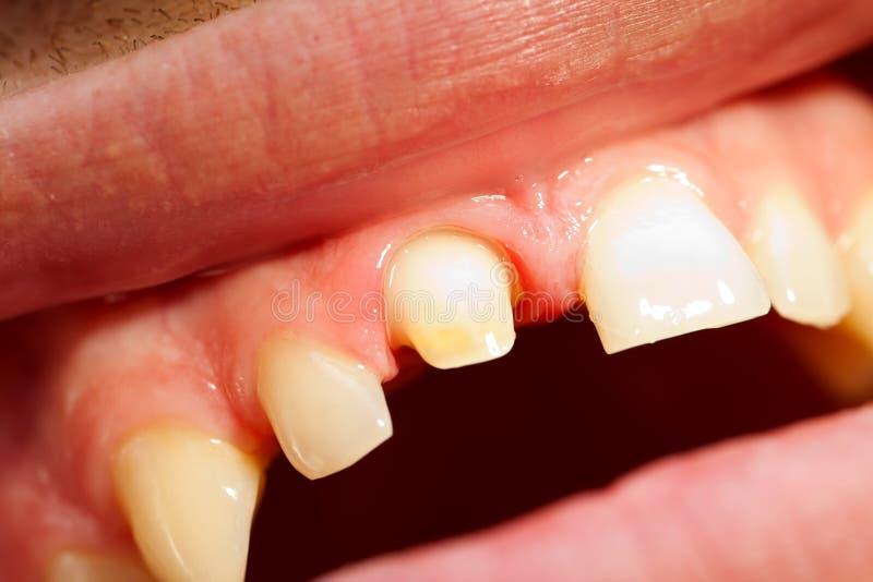 Trabajo de s del dentista ' foto de archivo
