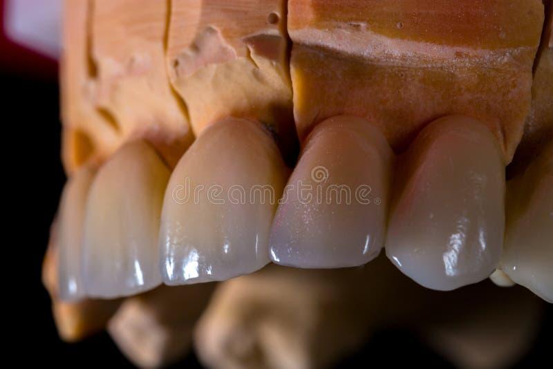 Trabalho do ` s do técnico dental imagem de stock