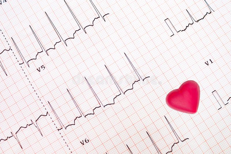 Tracciato di elettrocardiogramma del cuore ischemico immagini stock libere da diritti