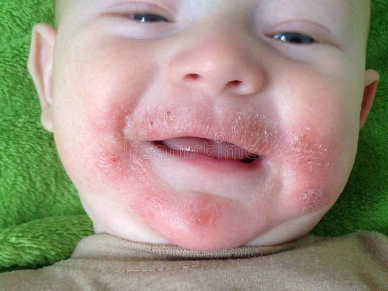 Traces of food allergies and atopic dermatitis on the face of the child. Closeup stock photo
