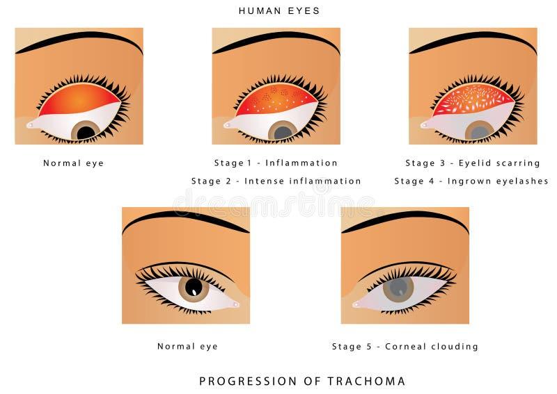 Trachoom van het oog vector illustratie