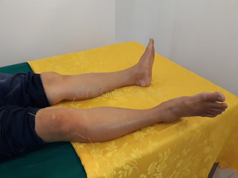 Traditional Chinese medicine, acupuncture on the legs. stock photo