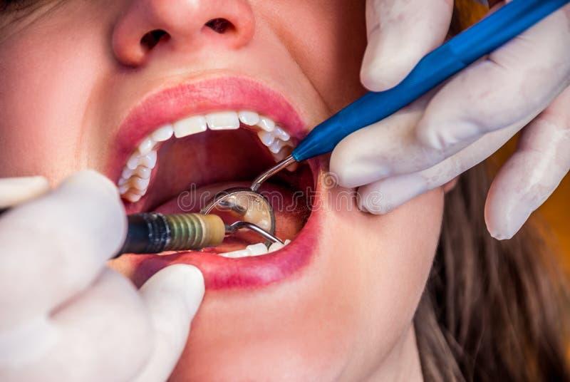 Traitement au dentiste images stock