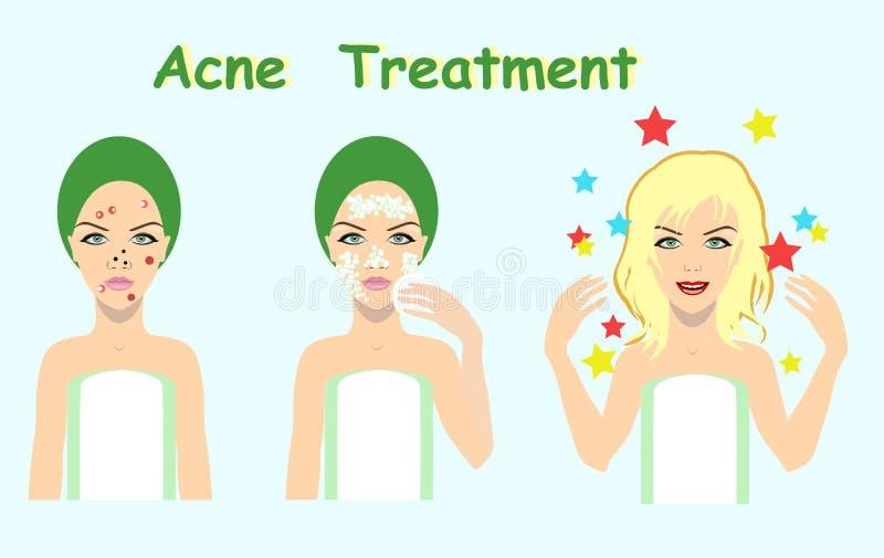 Traitement d'acné avant après, solution de problème de peau, illustration de vecteur illustration stock