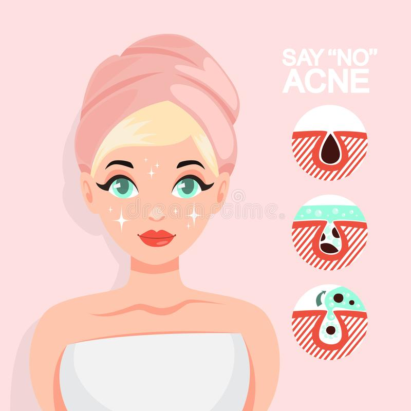 Traitement d'acné avec le masque protecteur Idée de beauté illustration libre de droits