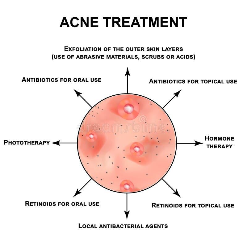 Traitement d'acn? Pustules, papules, comedones, points noirs, acné sur la peau Infographie Illustration de vecteur dessus illustration de vecteur