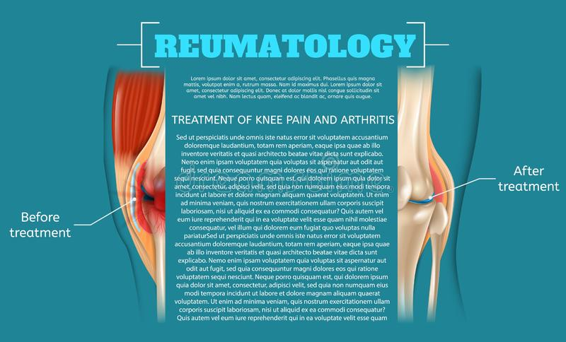 Traitement d'illustration de douleur et d'arthrite de genou illustration stock