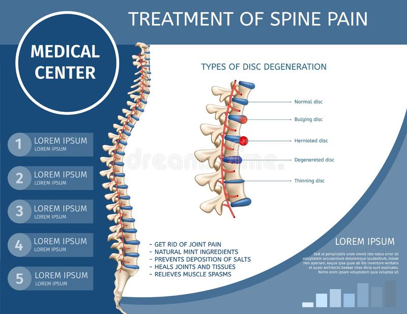 Traitement de bannière plate médicale de douleur d'épine illustration libre de droits