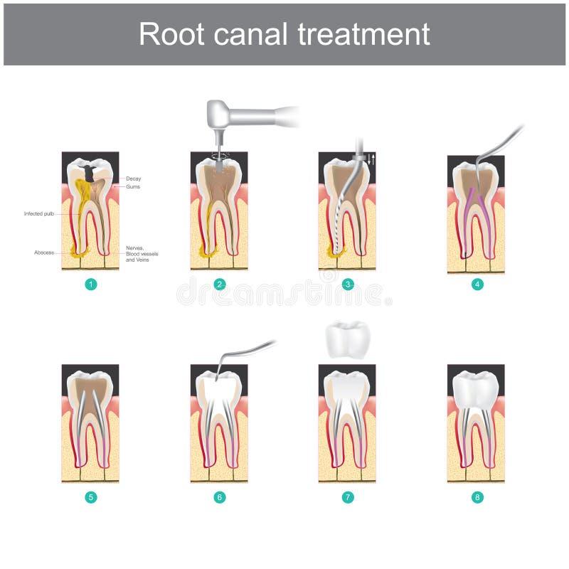 Traitement de canal radiculaire Comment traiter nos dents illustration libre de droits