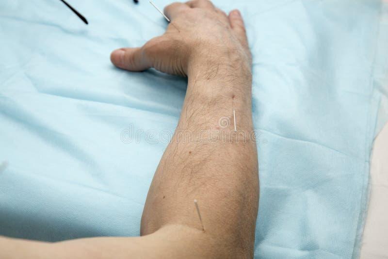 Traitement de patient d'acuponcture image libre de droits